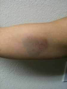 Heart-Shaped Bruises